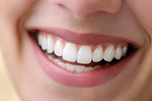Dental Implants in Silver Spring, MD