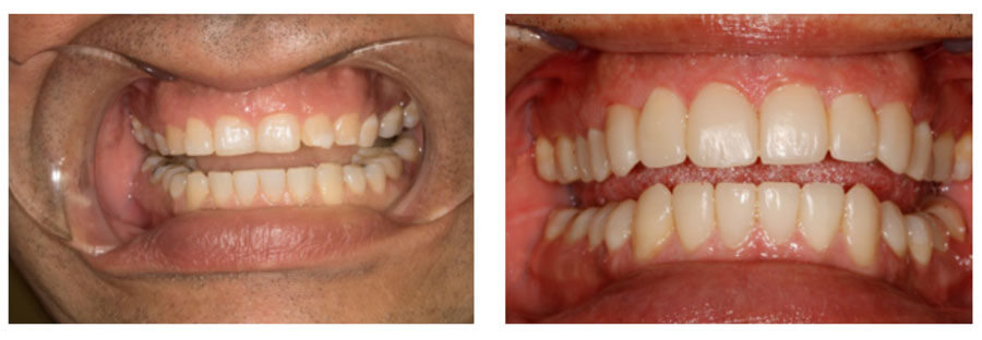 Before & After Rejuvenation Dentistry